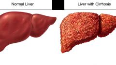 Dùng thuốc điều trị viêm gan B kịp thời để không bị xơ gan